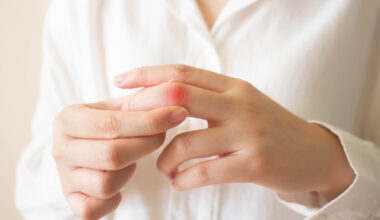 Lupus-Natural-Treatments
